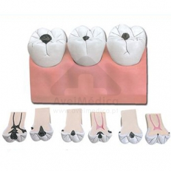 Modelo anatómico da cárie dentária