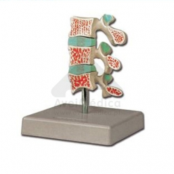 Modelo anatómico Osteoporose